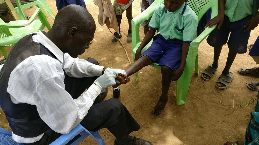 AFM Mercy School Dr Contrad working on Malaha school child's jigger infested foot.