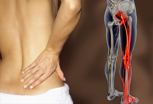 Sciatica is never fun, Image: WebMD Link  here