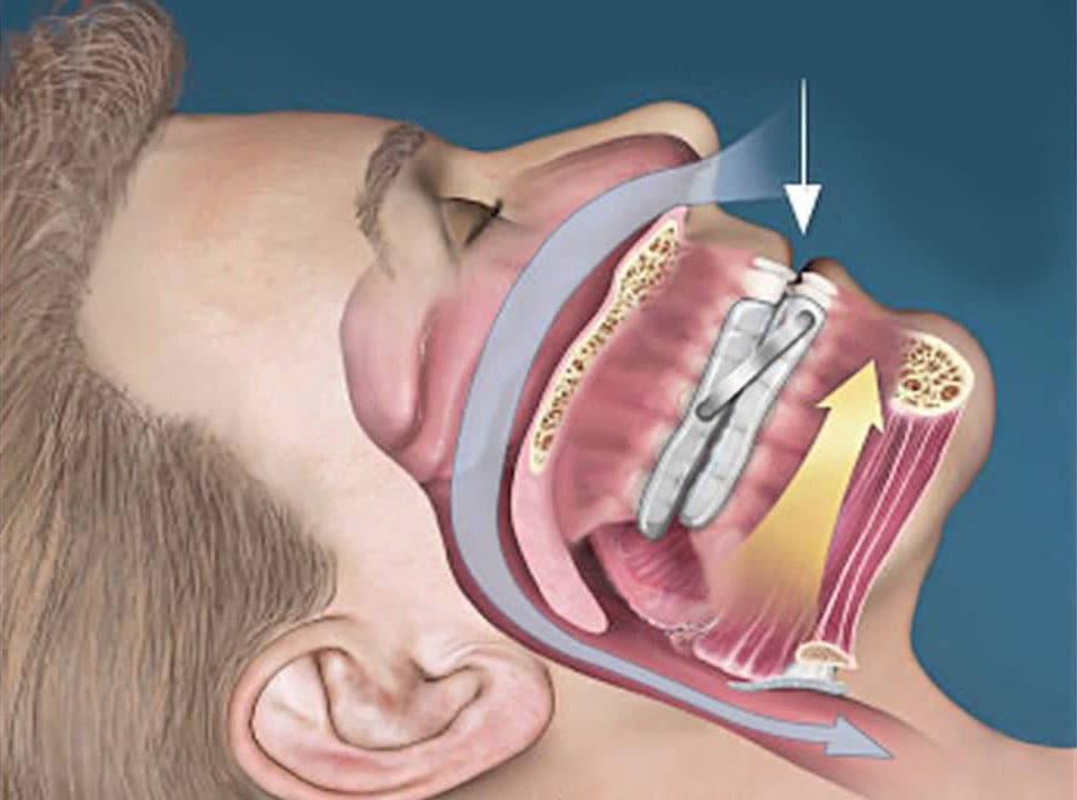 leep-Apnea-Mouthpiece-Better-Than-CPAP.jpg