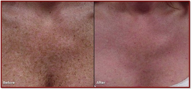 Z Medical Aesthetics IPL Photofacial Skincare Treatment Temple TX