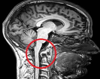 MRI BRAIN.png