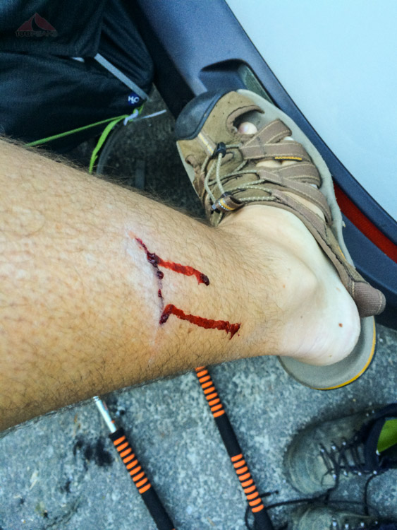 Injury, stepping out of the car