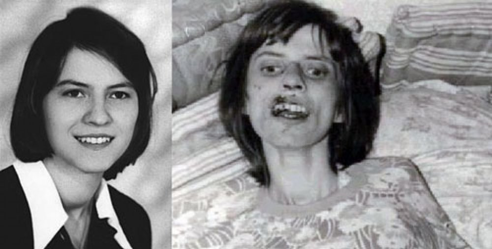 Anneliese Mitchel before and after her exorcisms