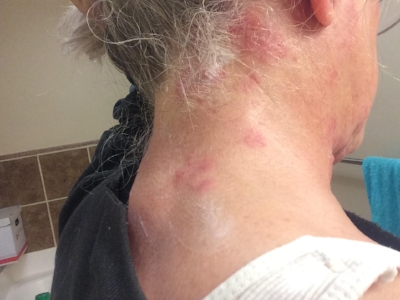 Shingles, Day 3, back of the neck