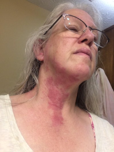 Shingles Day 4, as my neck begins to blister
