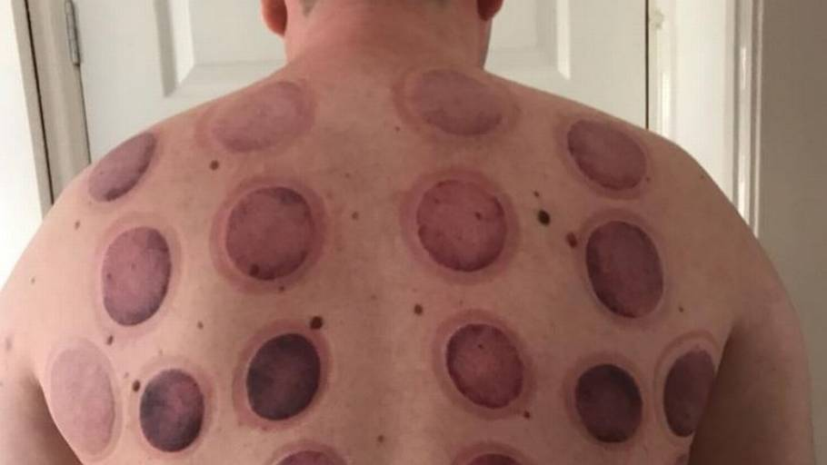 Just some different variations of cupping marks.