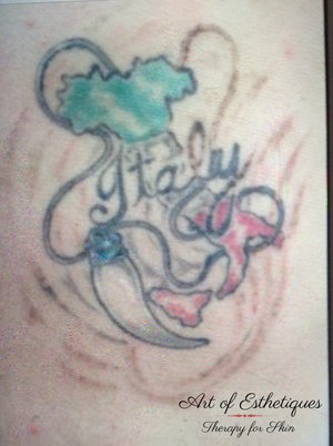 First tattoo removal treatment
