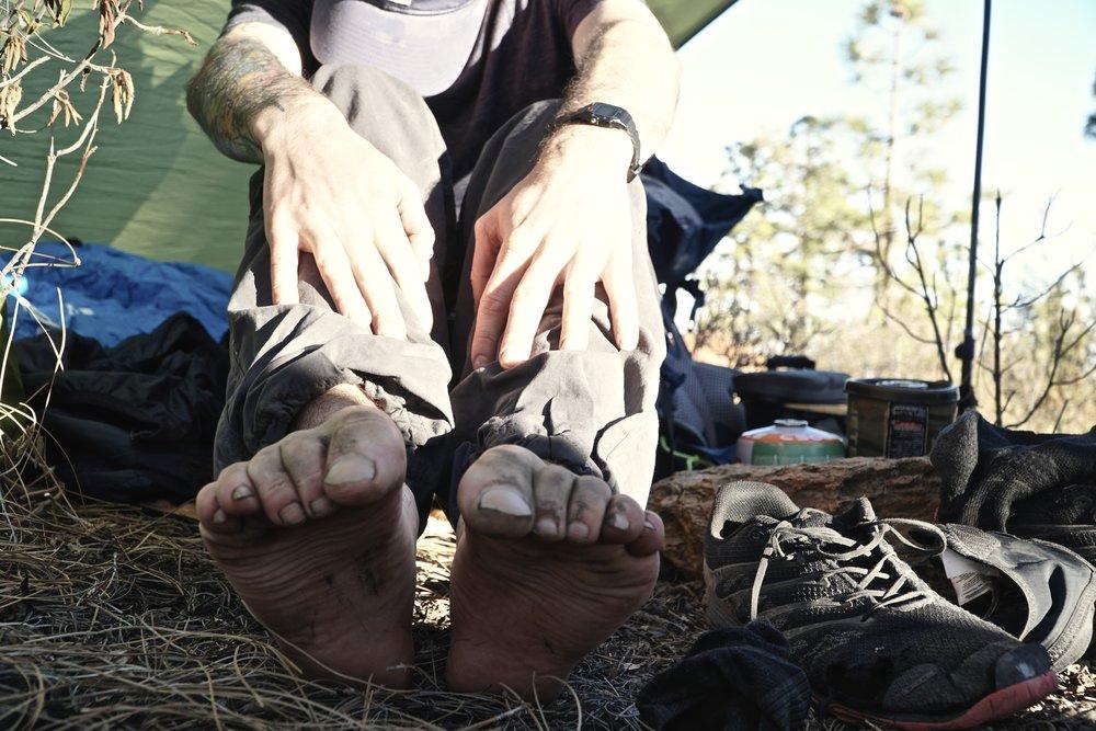 Tynde sko med masser af huller, betyder sorte tæer efter et støvet vulkanlandskab