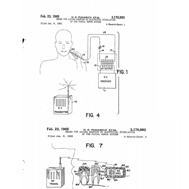 "Andrija's invention/patent for ""means of aiding hearing by electrical stimulation of the facial nerve system"