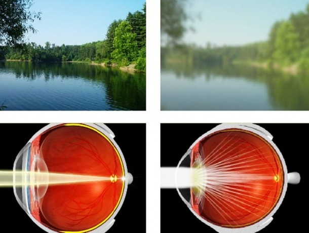 Cataract-Eye-and-Affected-Vision.jpg