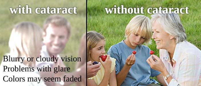cataract-700.jpg