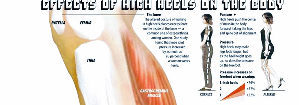 Highheels- knee.png