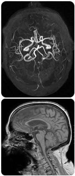 MRI pics.jpg