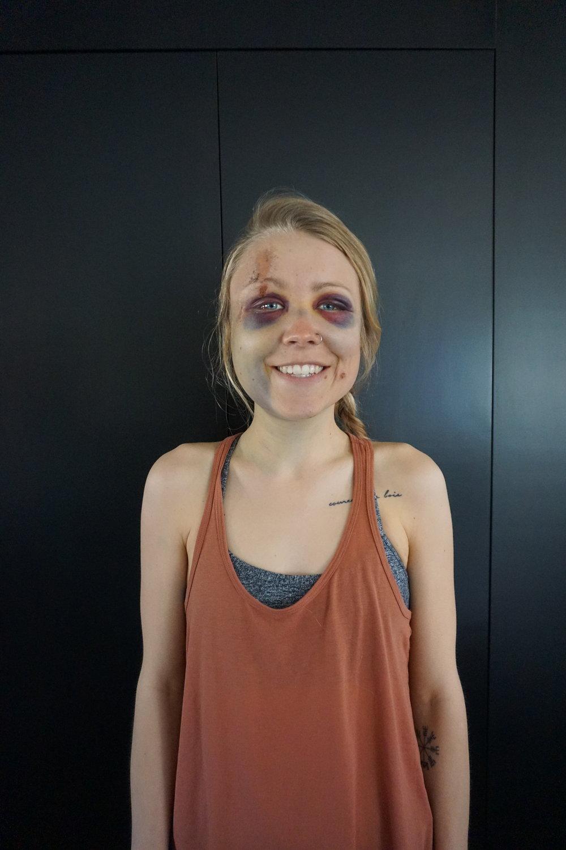 Day 5 - Looking like I belong on Walking Dead.