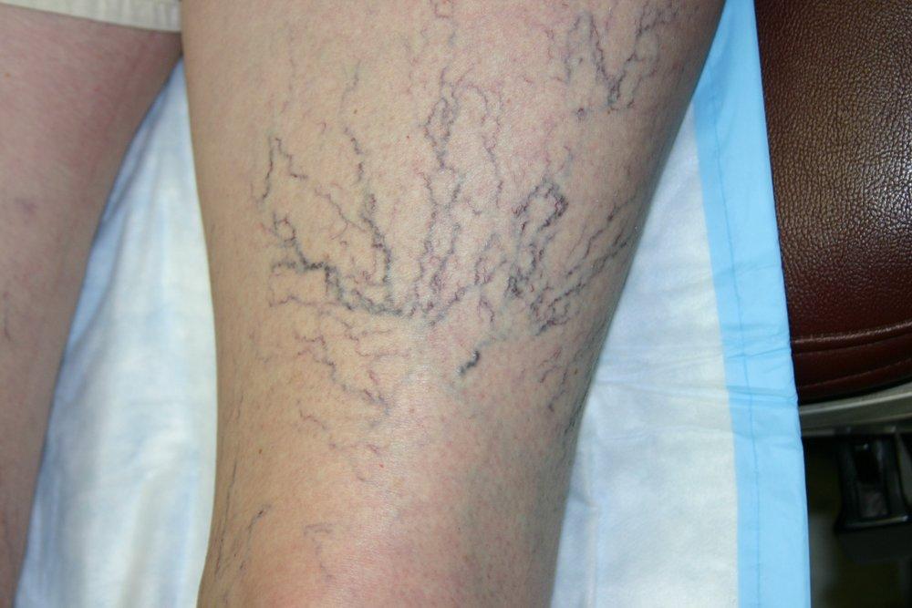 spider veins leg