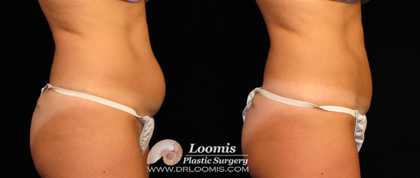CoolSculpting® results