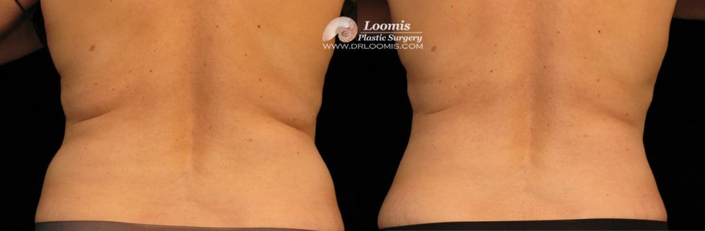 Waist CoolSculpting®