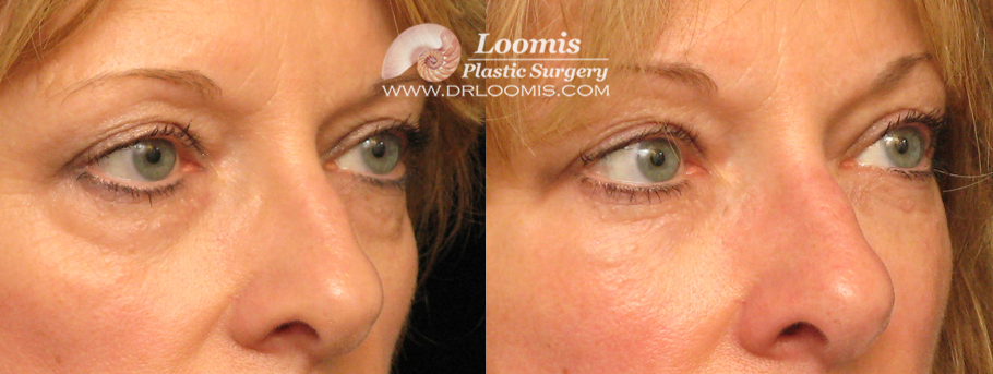 Liquid Eye Lift by Dr. Loomis (not a guarantee of results)