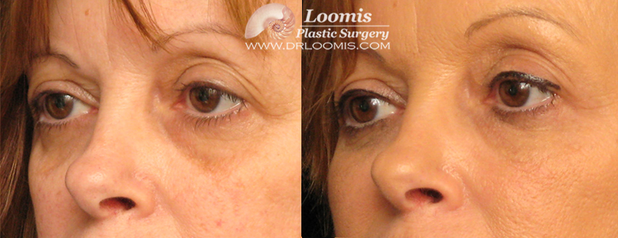 Liquid Eye Lift and Lytera® lightening of under-eye skin. (not a guarantee of results.)