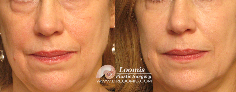 Liquid Eye Lift with Voluma® (not a guarantee of results; individual results vary)