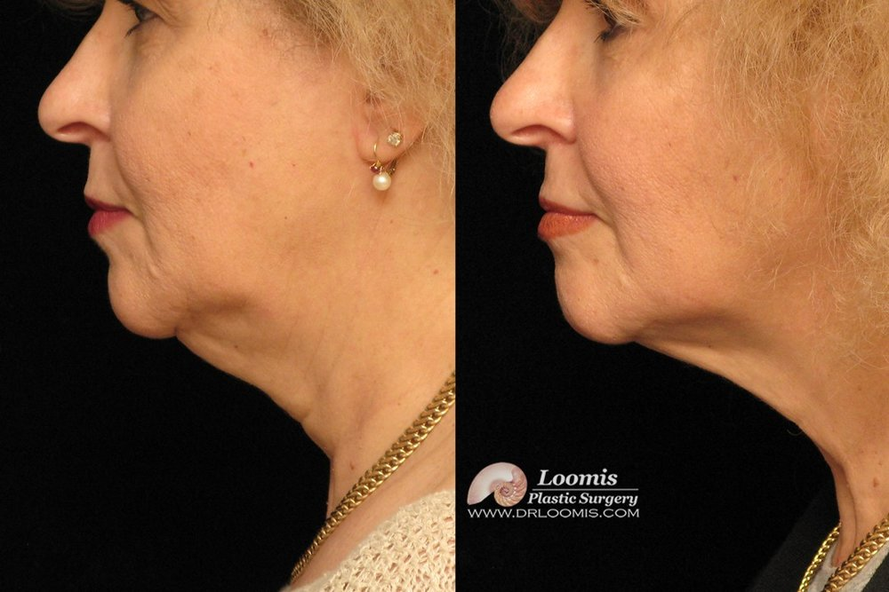 Kybella® treatment of double chin