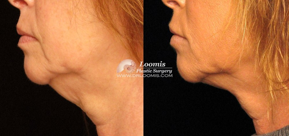 Kybella® treatment two sessions