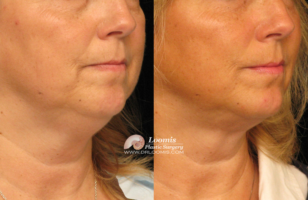Kybella Removal Of Neck Fat Reddit Neck Double Chin Loomis Plastic Surgery