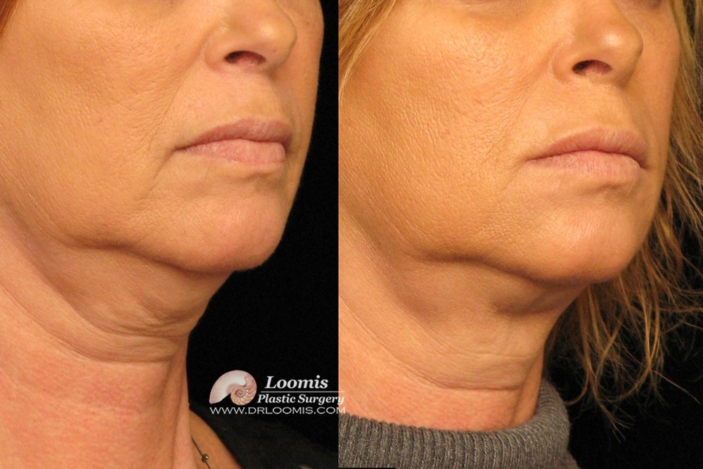 nonsurgical neck fat reduction