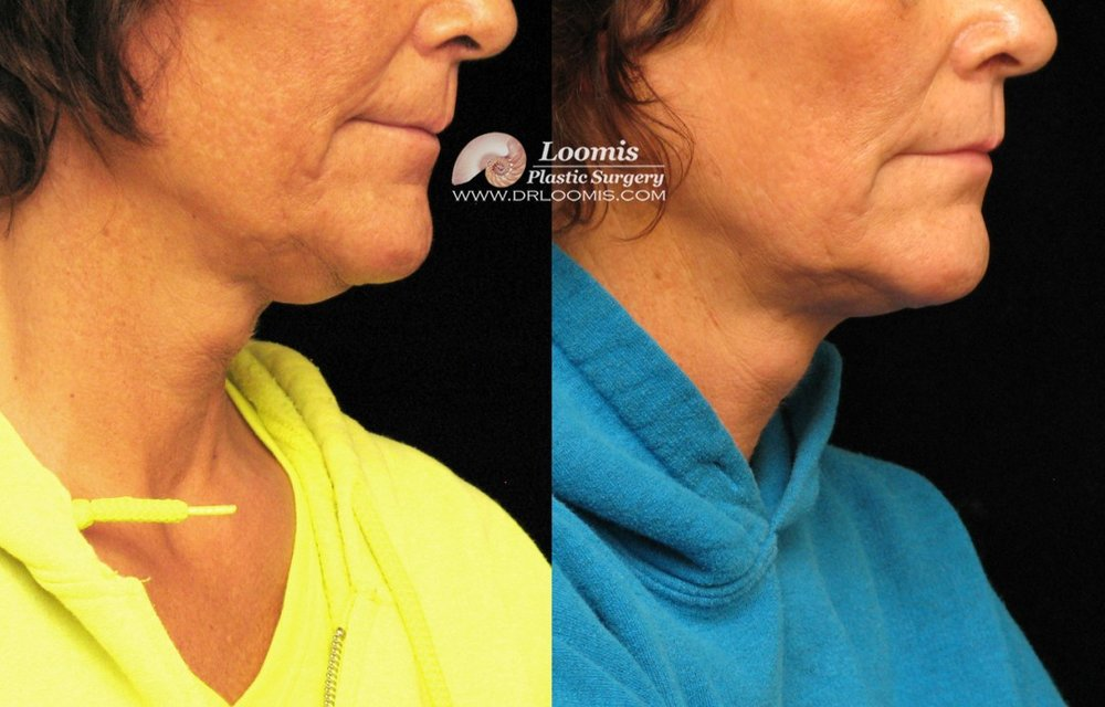 Nonsurgical neck fat treatment