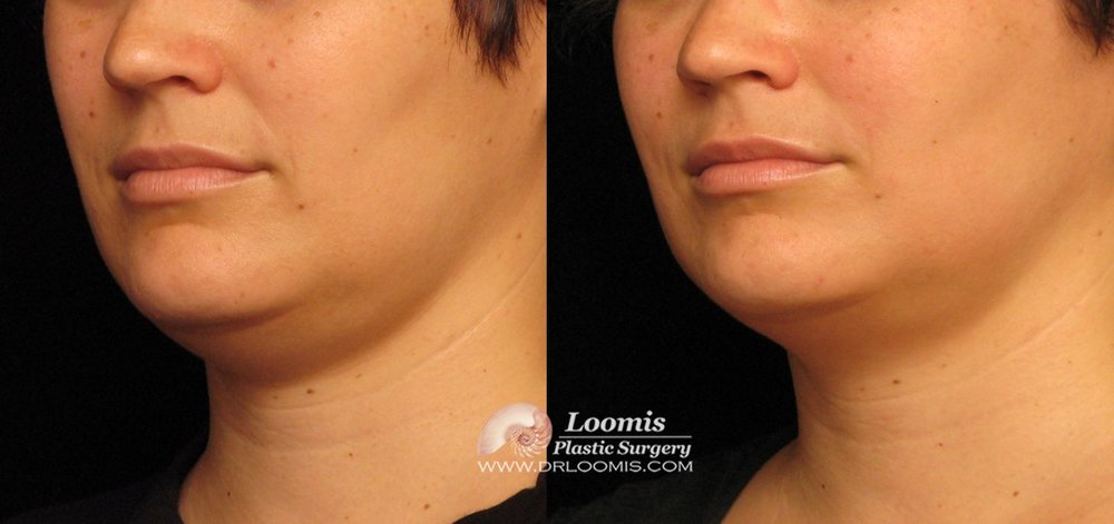 Kybella® one session