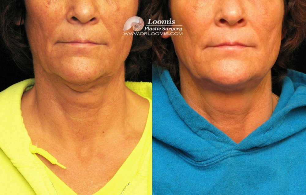 Kybella® for double chin