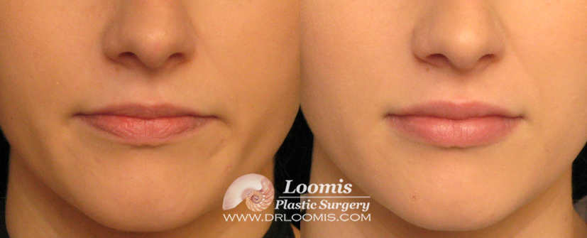 Volbella® lip enlargement