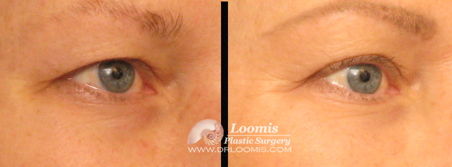Excess eyelid skin trimmed in the office by Dr. Loomis (not a guarantee of results).