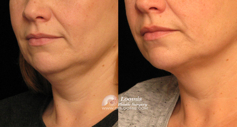 Kybella® neck fat removal (one session)