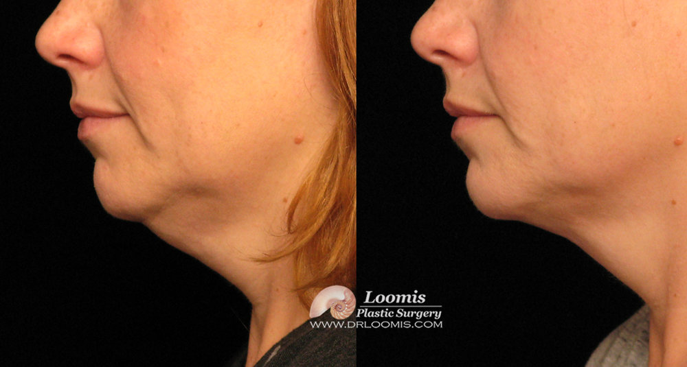 Nonsurgical neck fat removal