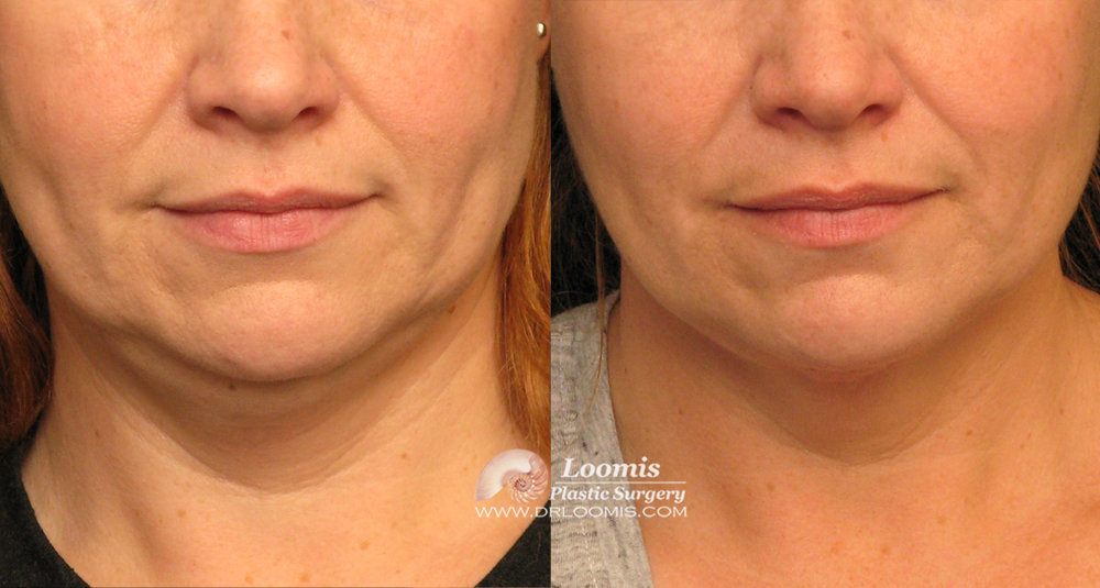 Kybella® treatment for neck fat - one session (not a guarantee of results)