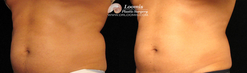 CoolSculpting® male waist