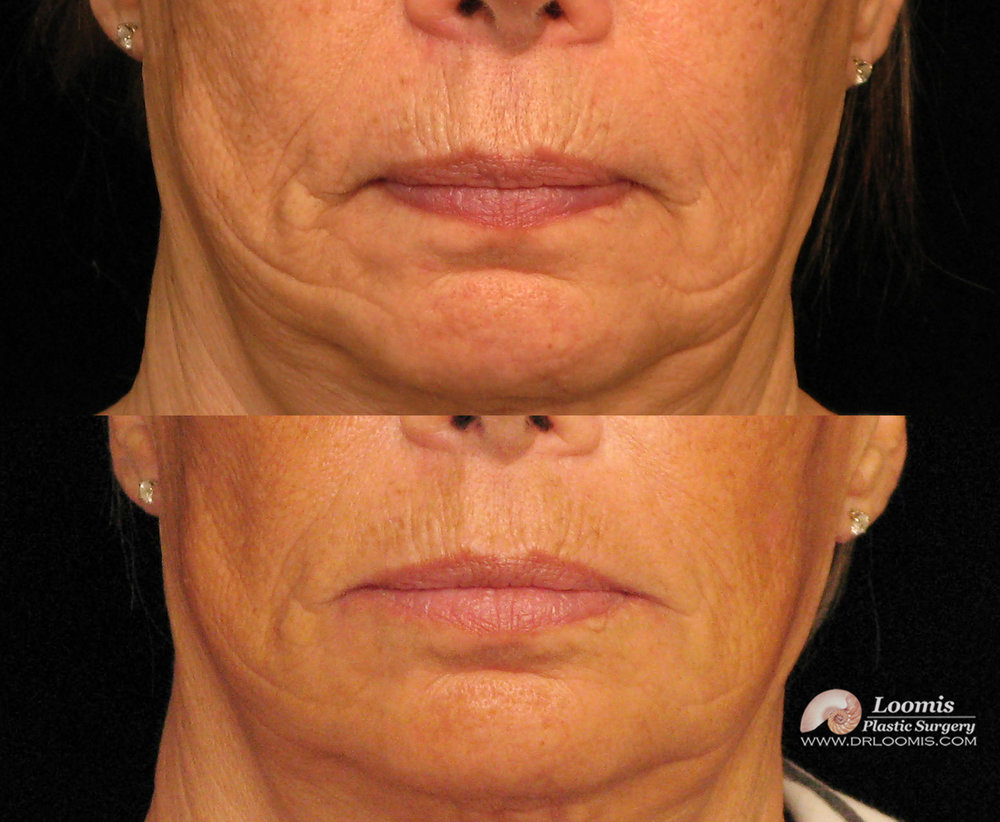 Juvederm® treatment of lip lines and wrinkles around mouth at Loomis Plastic Surgery ( not a guarantee of results)