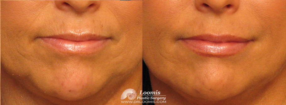 Treatment of jowls, lip lines, and wrinkles with Juvederm®, Vollure®, and Volbella® at Loomis Plastic Surgery (not a guarantee of results)