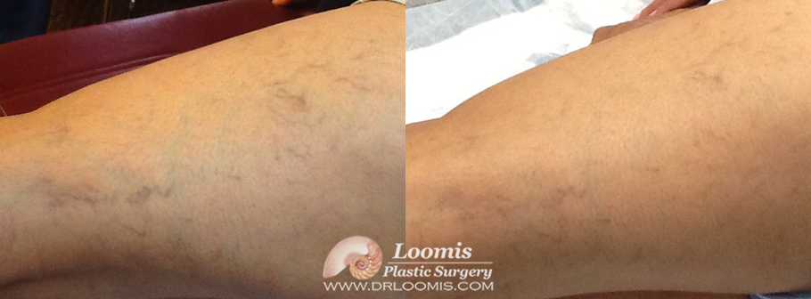 Typical lightening of spider veins following one session of injections by Dr. Loomis (not a guarantee of results)