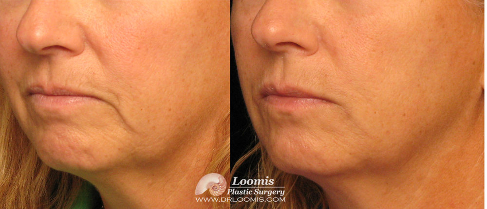 Patient before and after one Juvederm® and Vollure® treatment at Loomis Plastic Surgery (not a guarantee of results)