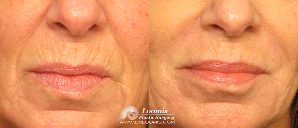 Juvederm® injections by Dr. Loomis for lip lines and marionette lines: three syringes. (not a guarantee of results.)