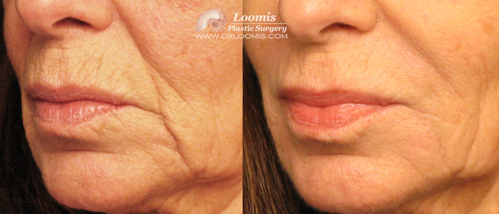 Juvederm® can soften many of the signs of aging around the mouth (patient of Dr. Loomis; not a guarantee of results).