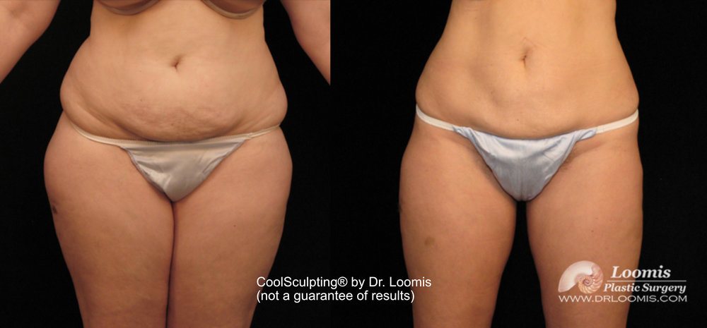 CoolSculpting Loomis Plastic Surgery