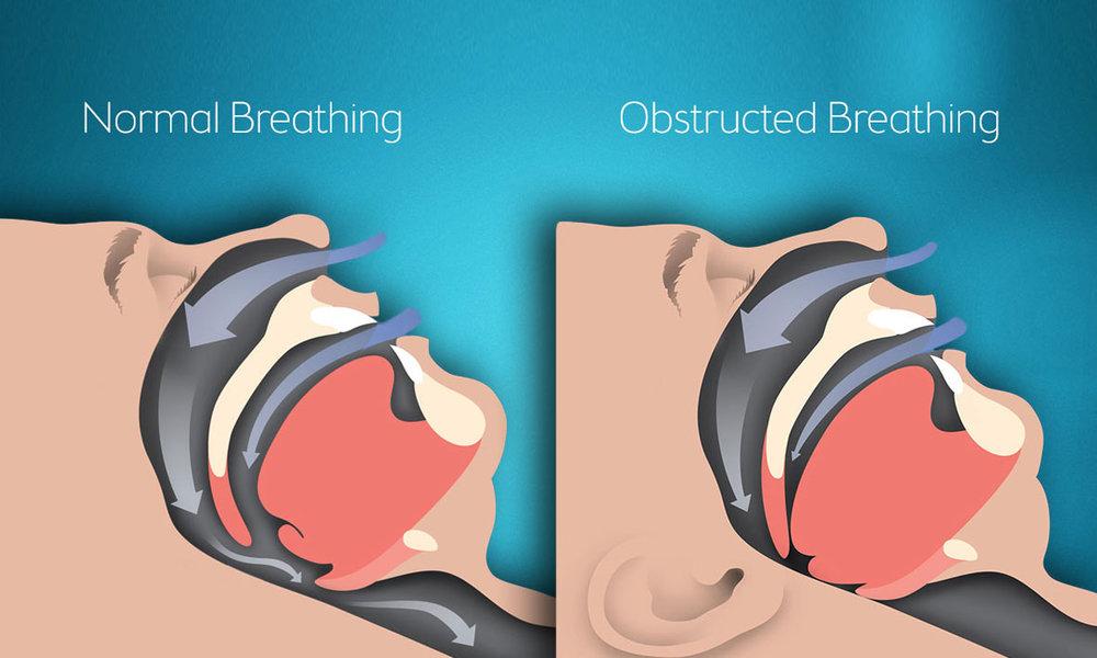Emergency Dentist Sydney Dental Implants for Sleep Apnea Sufferers 02.jpg