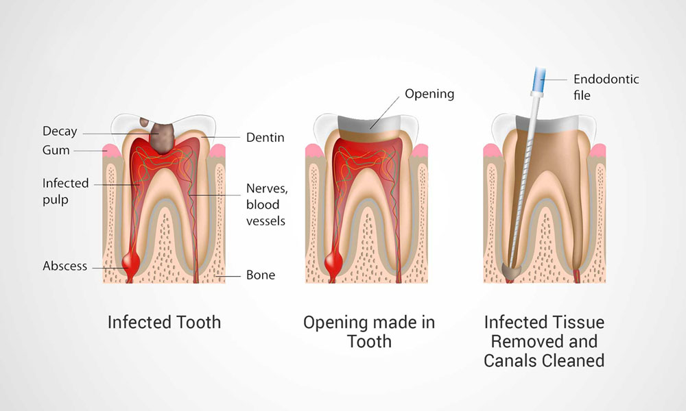 Traditional and laser root canal treatment.