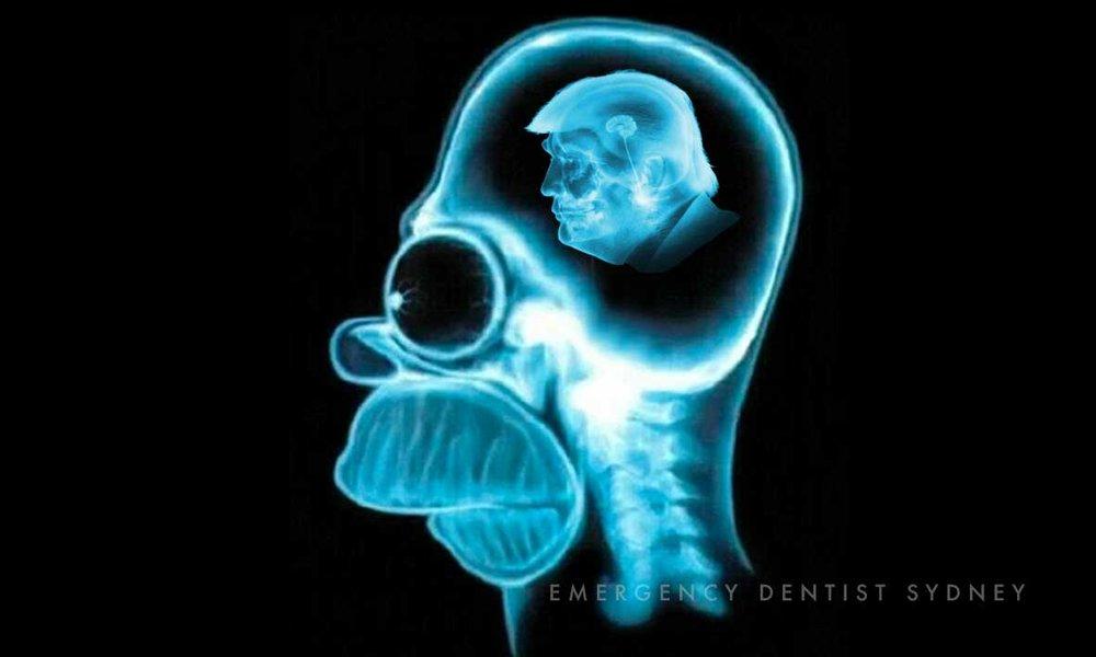©Emergency Dentist Sydney Don't Fear The X-Ray 06 Homer Simpson Donald Trump Small Brain.jpg