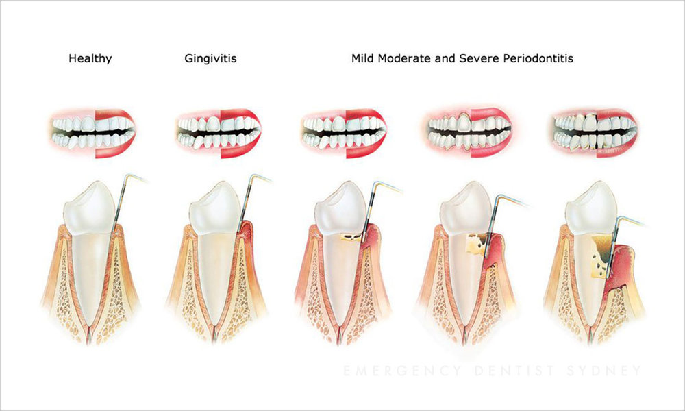 © Emergency Dentist Sydney Why Ignoring Bleeding Gums Is A Big Mistake Gum Disease.jpg