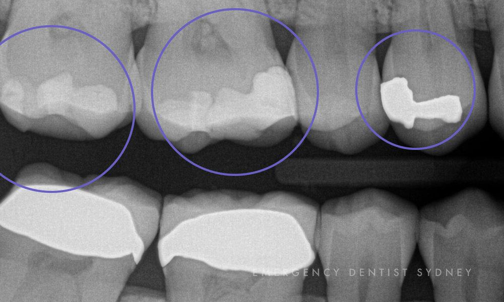 © Emergency Dentist Sydney Why Ignoring Bleeding Gums Is A Big Mistake Plaque Micro.jpg