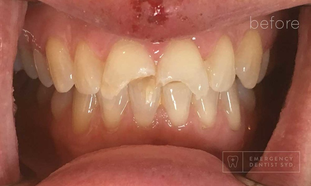 Treatment: Dental bonding and crowns to restore front teeth